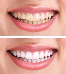 Teeth Whitening | Today's Dental | Pinellas Park, FL | 33781