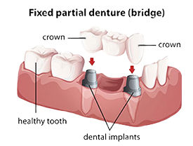 Dental Bridges |Today's Dental | Pinellas Park, FL | 33781