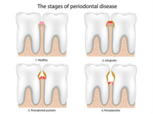Gum Disease Treatment | Today's Dental | Pinellas Park, FL | 33781